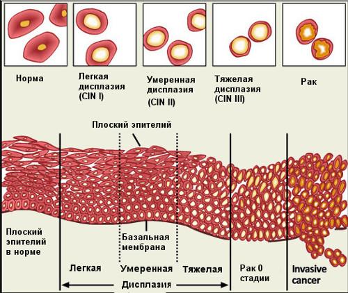 Как лечить дисплазию шейки матки 1 степени отзывы