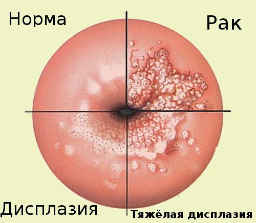 Изменения в тканях